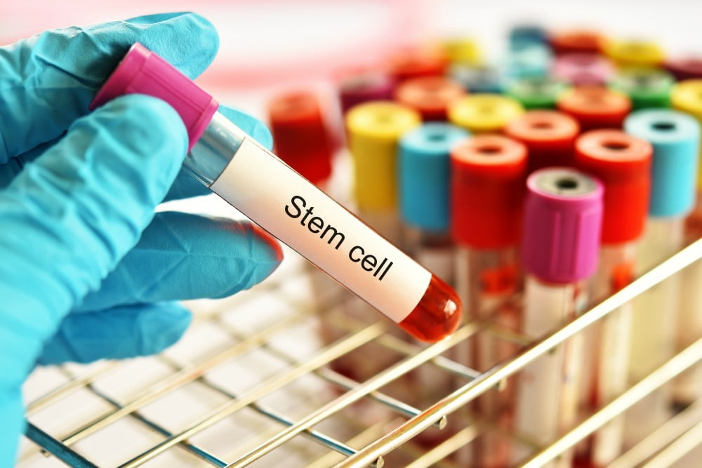 Stem cell - Cord Blood Banking